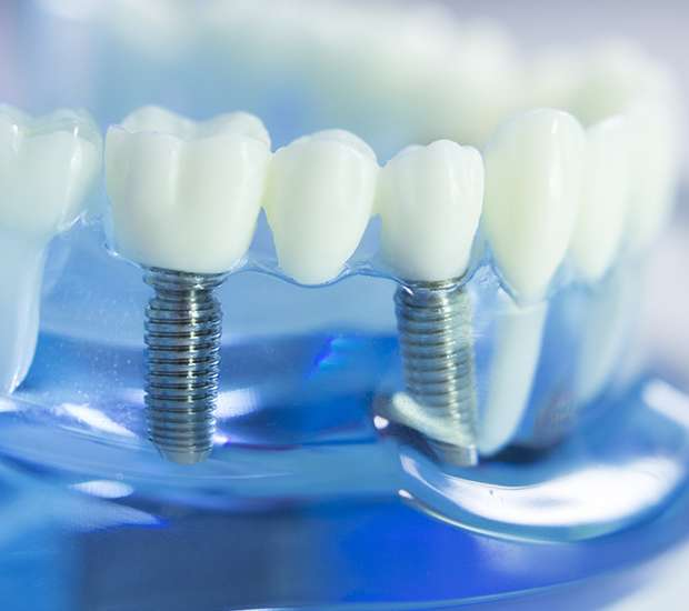 Independence Dental Implants