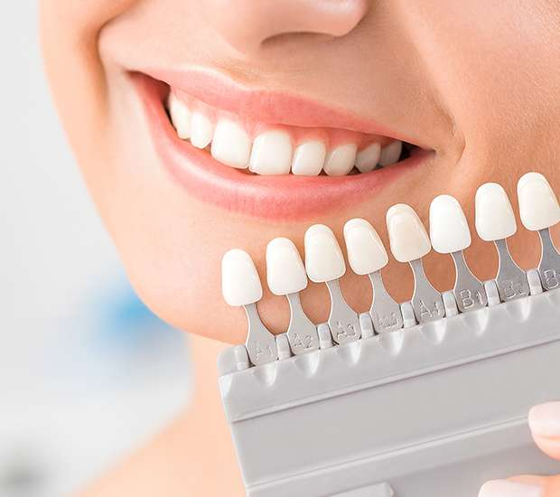 Independence Dental Veneers and Dental Laminates