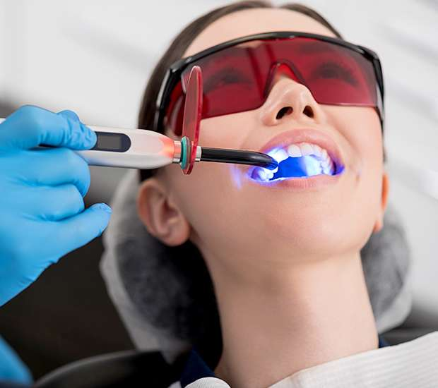 Independence Professional Teeth Whitening